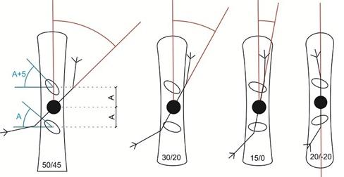 c52956332e0ef4 Kaczka/żaba to ustawienie symetryczne lub prawie symetryczne kiedy przednie  wiązanie jest ustawione w stronę przodu a drugie w stronę tyłu deski, ...
